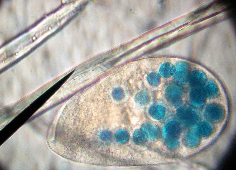 800px-Paramecium_dye_blue